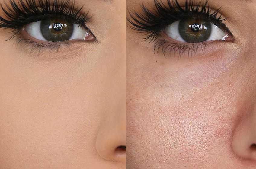 مسامات الوجه